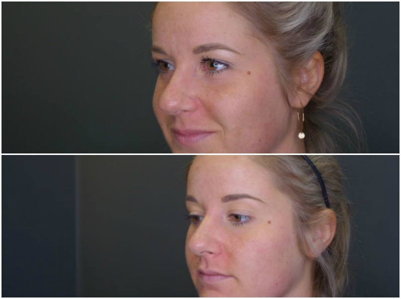 I tried cosmetic injectables and here's what happened